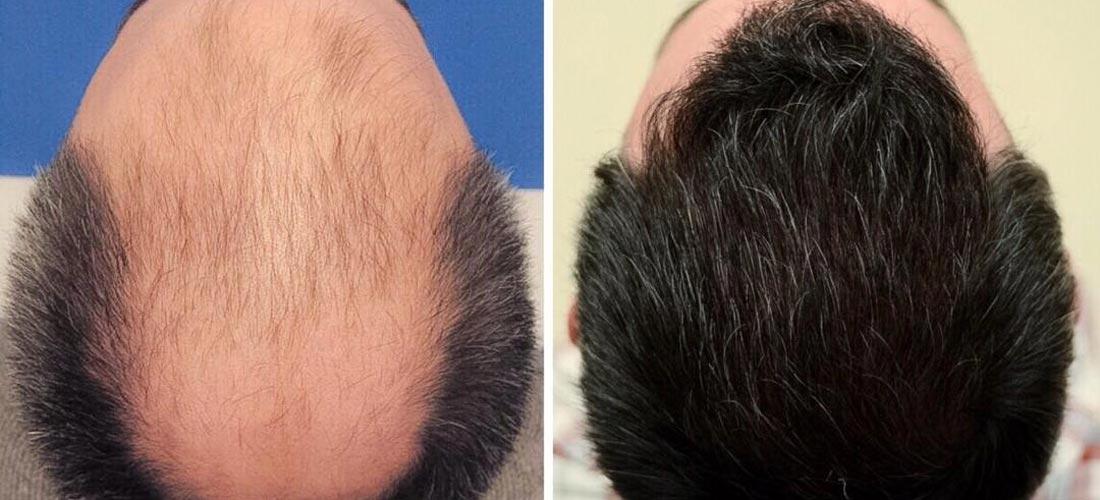 قبل و بعد از عمل کاشت مو SUT