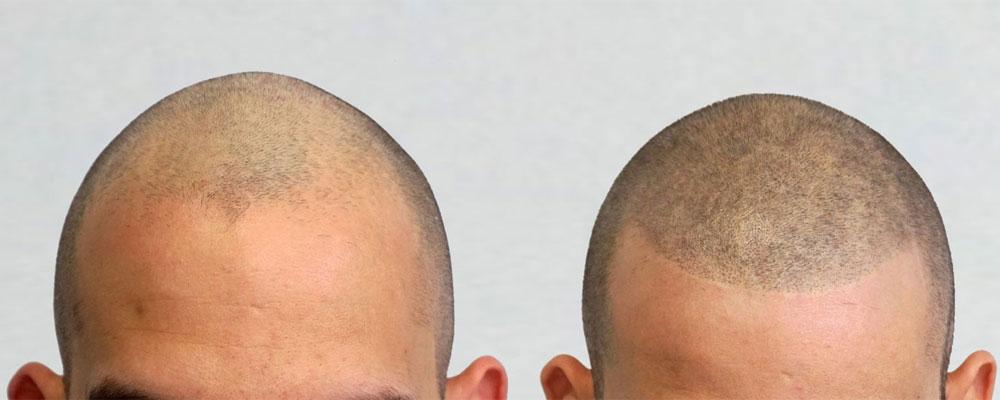 رشد تارهای مو پس از کاشت مو