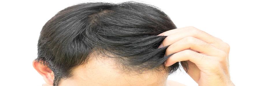 تاثیر استرس بر موهای سر