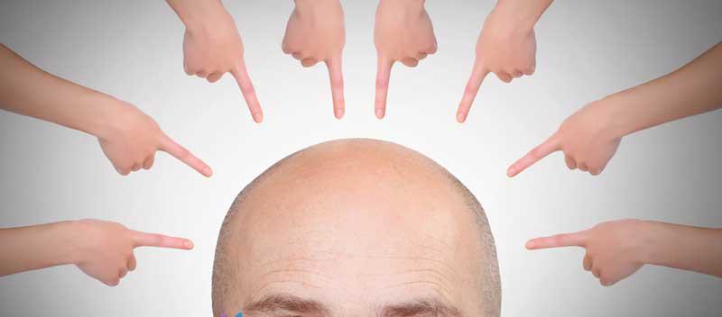 پکیج تقویت و جلوگیری از ریزش مو نیوشا